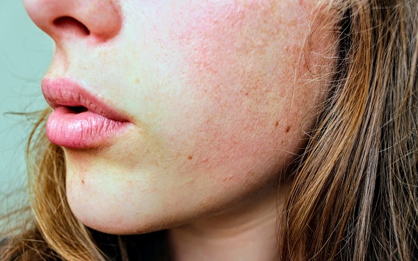 How to dry out acne breakouts overnight with aspirin